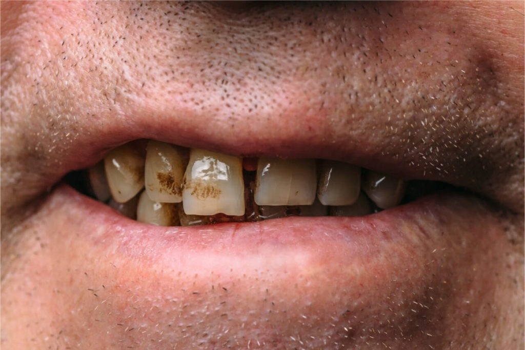 Smoking and periodontal disease can be fatal