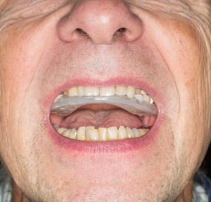 senior wearing a night mouth guard for sleep apnea