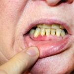 What is Dental Implant With Bone Loss?