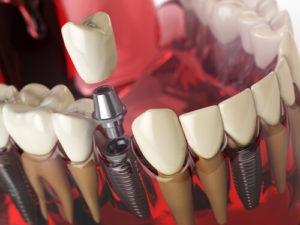 dental implant with bone loss